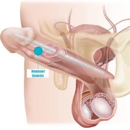 Penile-Implant-Genesis