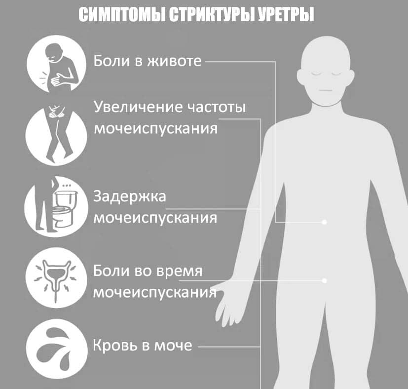 уретропластика у мужчин