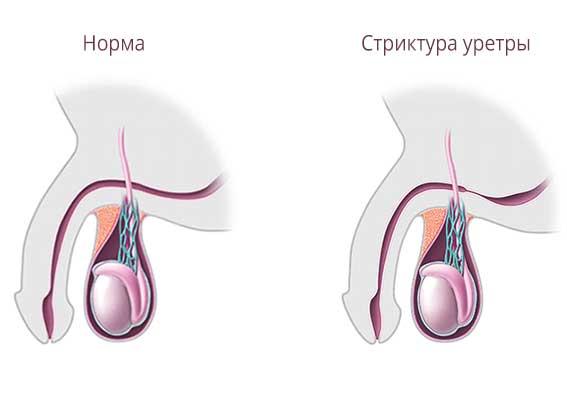стриктура уретры у мужчин