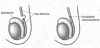 вазовазостомия после вазэктомии