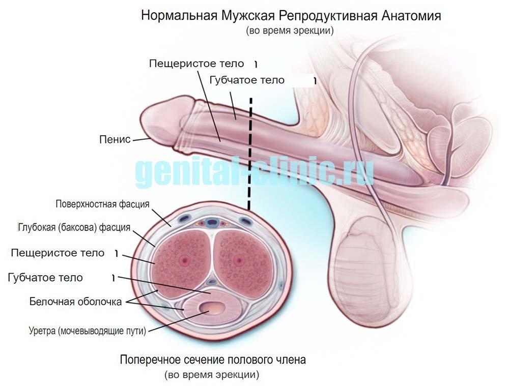 болезнь пейрони устройство члена
